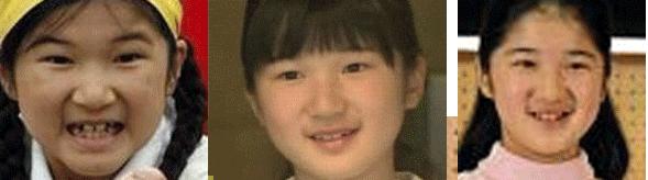 愛子さま歯並び比較。歯列矯正いや影武者?