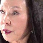 藤田紀子のボトックス整形が見苦しい。二重瞼も埋もれてるし