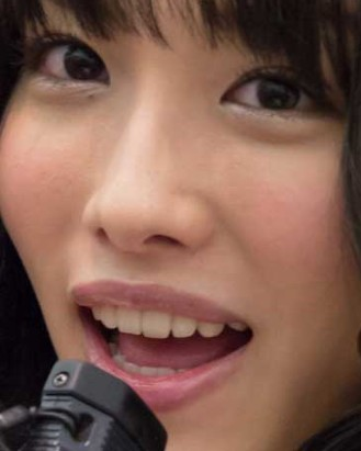 今野杏南は前歯を歯列矯正で直した