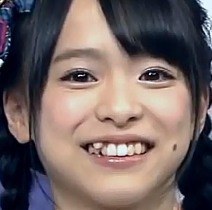 倉野尾成美の歯が変なとこからはえてるぞ?