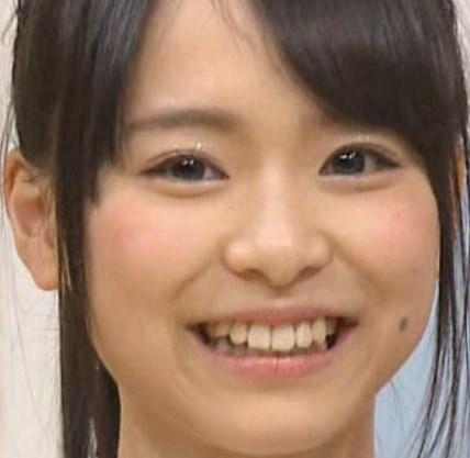 倉野尾成美が歯の矯正をしていた