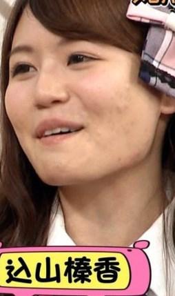 込山榛香のニキビ跡が目立つ