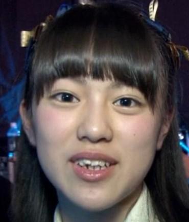 竹内彩姫の歯並びがひどい