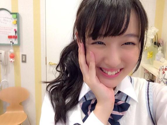 鎌田菜月は前歯を矯正しないの?