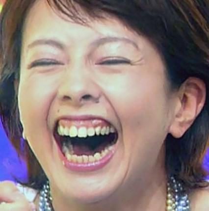 沢口靖子の歯茎は矯正済み?
