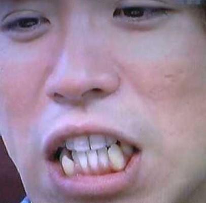 村上信五の歯並びは下も悪い