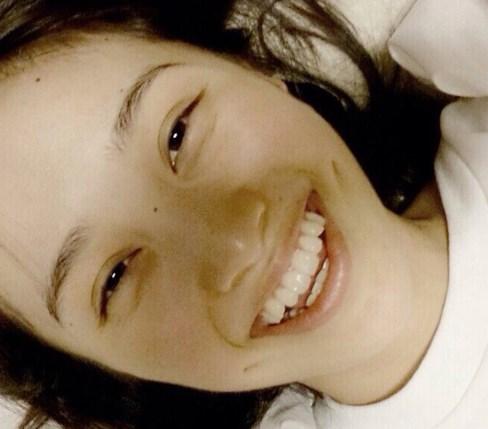 百田夏菜子のすっぴん画像で整形をチェック